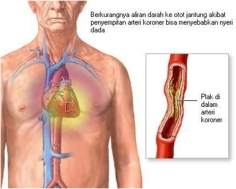 penyumbatan -darah-di-jantung